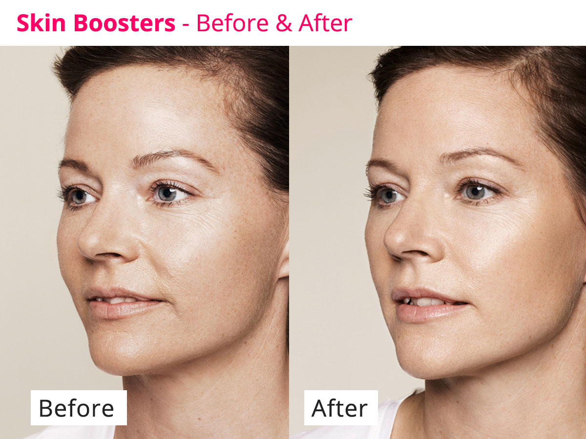 Skin boosters - before and after