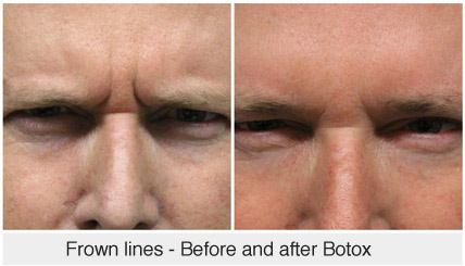 Frown lines - Before and after Botox