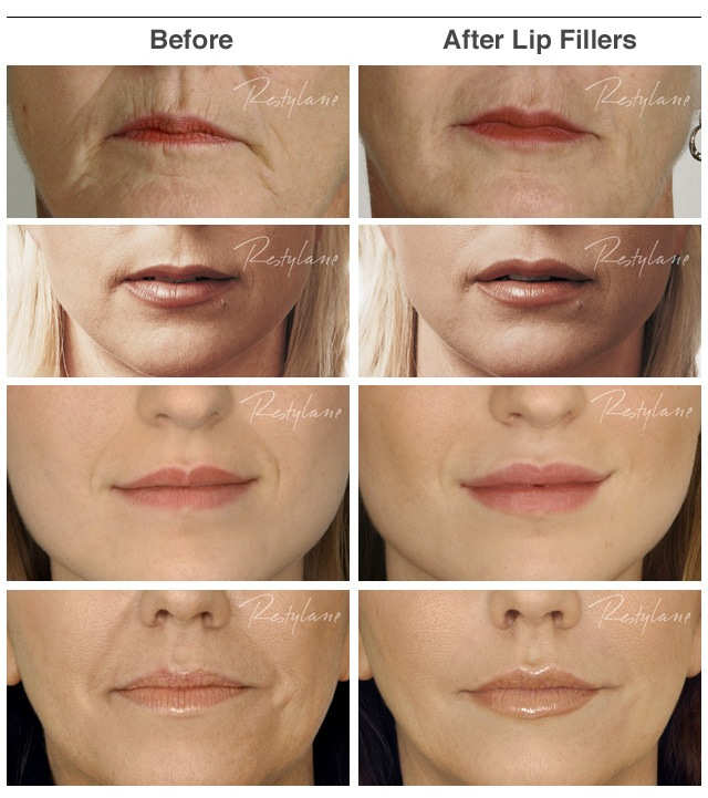 Lip Fillers - before and after - Face Clinic London