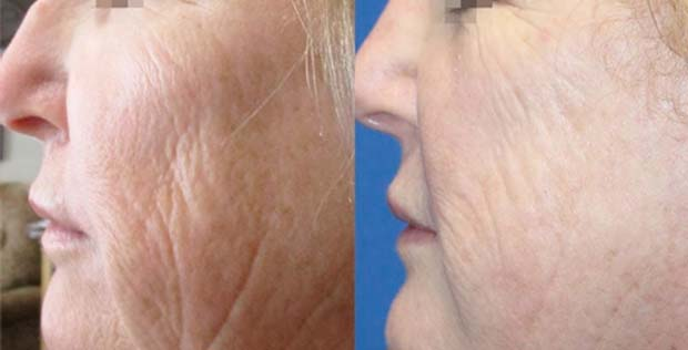 Secret RF - Improve ageing skin, photo-damage, fine lines and wrinkles on the face and neck, scars, acnes scars, skin quality and striae (stretch marks)