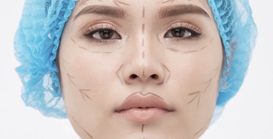 Cryotherapy Lesions Lumps Bumps Problem Areas
