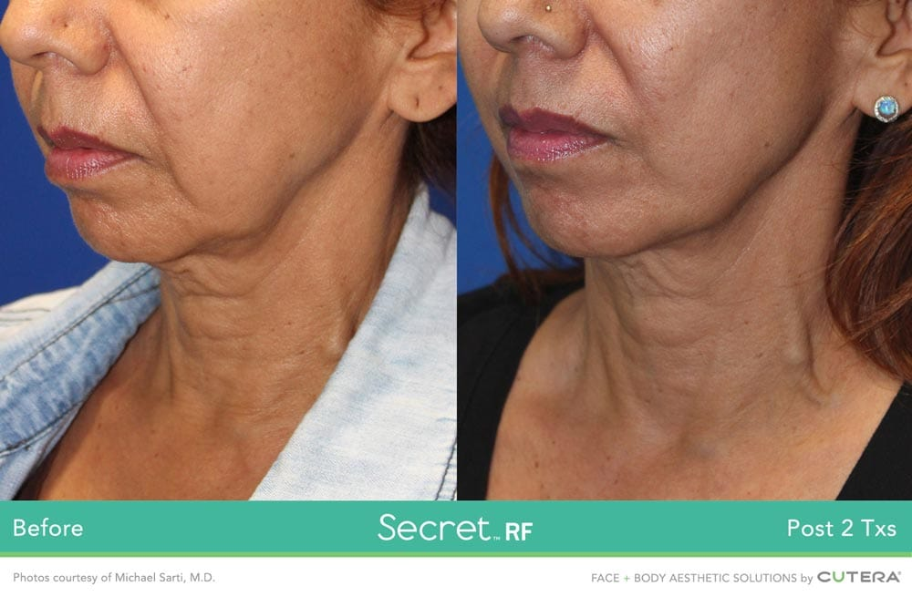 Before/After Secret RF London Treatment - Neck - fine lines, scars, stretch marks, wrinkles in London