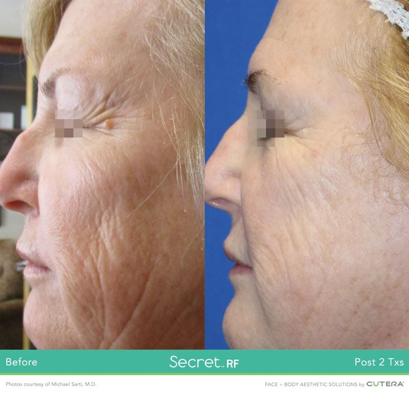 Before/After Secret RF London Treatment - fine lines, scar treatment, stretch marks, wrinkles in London